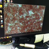 Microfilaria test
